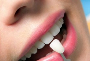 cosmetic-dentistry-service